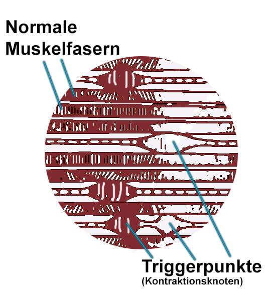 Triggerpunkte-Skizze_Triggerpunkte_vs_Muskelfasern